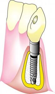 セントラル歯科 インプラント