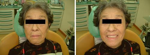 BPS義歯 本義歯の装着