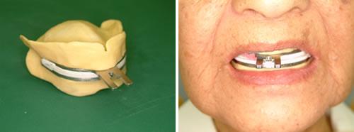 BPS義歯 技工操作