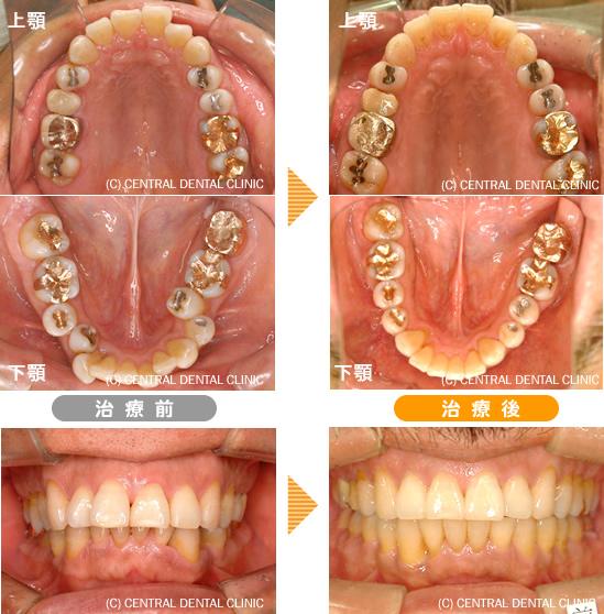 歯列矯正症例
