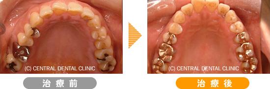 むし歯症例1