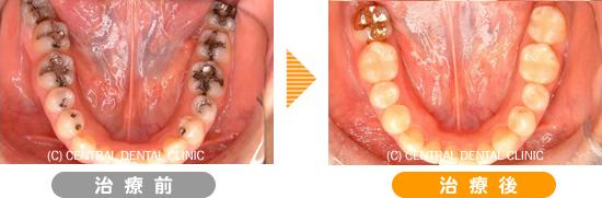 むし歯症例4