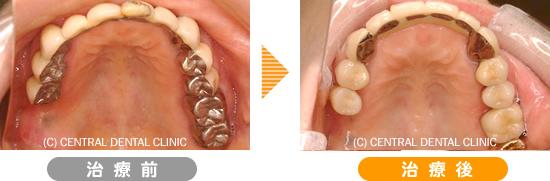 むし歯症例5