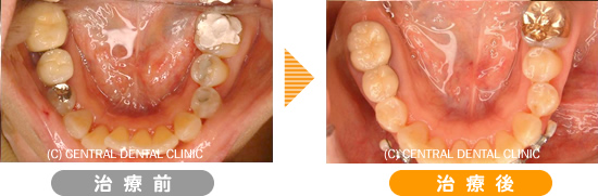 むし歯症例6